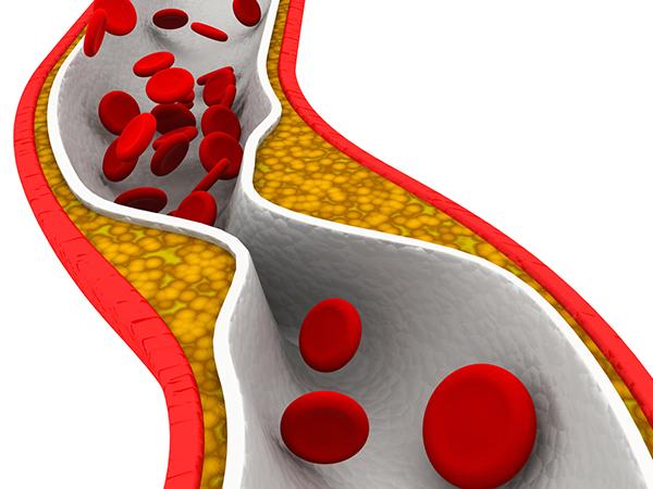 脂質異常症(高コレステロール血症・高脂血症)